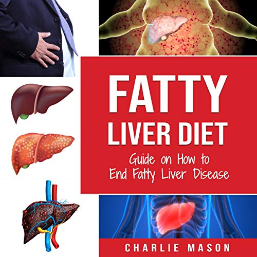 23) Fatty Liver Diet